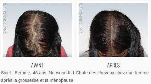 Les masques pour les cheveux de lhuile dabricot pour