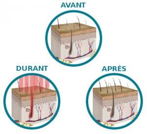 phase traitement laser calvitie