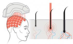 Traitement laser perte de cheveux