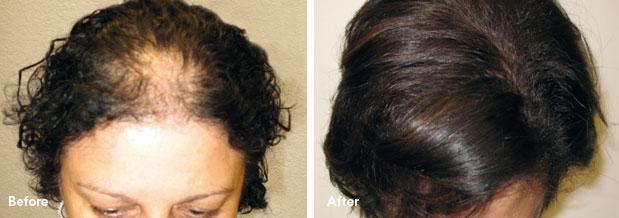 traitement laser femme avant/après